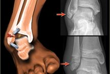 """Ankle Fracture / A broken ankle is also known as an ankle """"fracture."""" This means that one or more of the bones that make up the ankle joint are broken."""