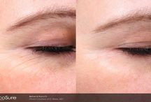 PicoSure Laser Facial Treatments