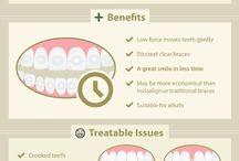 Invisalign / Allinea i tuoi denti senza che gli altri vedano il tuo apparecchii