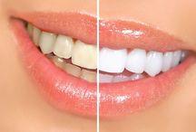 Dinți mai albi