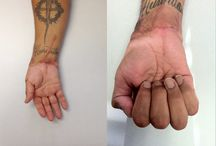 Mutilated Hand Surgical Outcomes