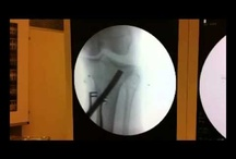 Tibial Plateau Fracture / Bone break through the joint surface of the top of the tibia within the knee joint.
