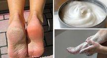 remedio para pés c.rachaduras