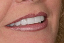 Beautiful Ideal Dentistry Smiles / Some of our work here at Ideal Dentistry. Every smile is styled with your complete guidance - let us exceed your expectations!