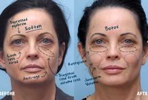 Before/After Photo Gallery / Take a look at what can be accomplished with a little filler and the right cosmetic surgeon!