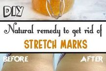 strech marks cellulite
