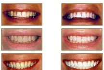 Bedazzling! / Dr. Sparks can help you to get confident in your smile again.