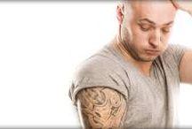 Tattoo Removal Lasers / Tattoo Removal Lasers