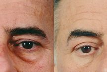 Blepharoplasty Surgery - Eyelid Lift / Plastic surgery of the eyelids, or blepharoplasty, is a procedure to remove drooping eyelids or puffy bags under the eyes, both of which can make your face look older and more tired than you feel. Blepharoplasty can take years off your appearance by opening up your eye area to give your face a younger, fresher look.
