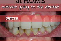 Teeth / Teeth whitening