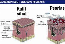 PSOAROSIS