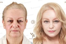 Korean Anti-aging Treatment / Anti-aging Treatments at JK Plastic Surgery
