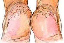 pés rachaduras