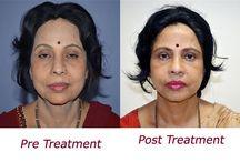 Facelift Surgeon India