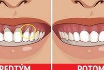 zuby dásně