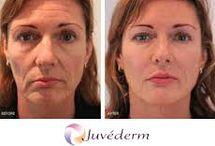 Juvederm Voluma / Mid face volume restoration