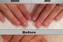 Hair loss and brittle nails