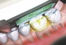 Moderne Analyse / Die exakte Analyse von Zahnstellung, Kiefer und Kiefergelenken bildet die Basis für eine schnelle und erfolgreiche kieferorthopädische Behandlung. Dabei setzen wir auf möglichst komfortable Technik, die unseren Patienten die Analyse so angenehm wie nur möglich macht.