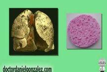 Cáncer de Pulmón - Videos / Videos didácticos acerca del cáncer de pulmón