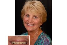Smile Makeover Gallery El Cajon CA 92020 / You can achieve the smile makeover of your dreams with the cosmetic dentists at San Diego Smiles in El Cajon CA 92020. Whether you require dental implants for missing teeth or restorative dentistry which may involve dental crowns, teeth whitening bonding, white dental fillings or porcelain veneers we can take great care of you! http://sdsmilestudio.com/smile_makeover_gallery_el_cajon.html