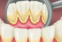 curățarea dinților si albirea lor