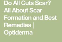 .scars.