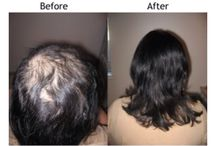 Hair replacement & integration systems