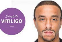 #Vitiligo
