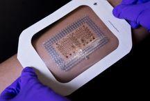 Global Biosensors Market