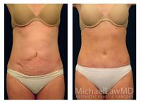 Tummy Tuck at Michael Law MD Aesthetic Plastic Surgery