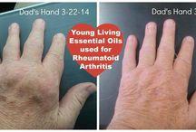 Arthritis yl oil