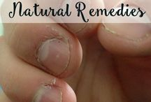 Home Remedies for all / How To''s Included