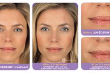 Dermal Fillers / Dermall fillers use a tissue friendly gel that closely resembles a naturally occurring material in the body. They have the effect of plumping up the skin, making it appear fuller and smoother. This treatment is commonly used for nose-to-lips lines and lips, and can last for about 9 to 12 months based on your lifestyle. You can resume your normal daily routine immediately after these treatments.