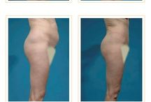 Tummy Tuck: Before & After / Here are a few of our before and after photographs of actual patients and the phenomenal results that they saw after the procedure. For more info about the Tummy Tuck procedure, feel free to visit our website at http://drjayburns.com/procedures/abdominoplasty/