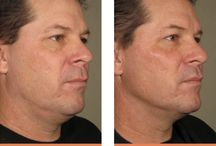 Before and After - LA Laser Center / Before and After - LA Laser Center  Our products and services have helped clients feel more comfortable in their skin.   Call us for a free consultation: 800-501-3376  www.LALaserCenter.com
