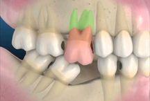 Perda de dente