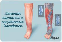 Варикоз и звездочки на ноге