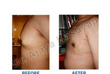 Gynecomastia Surgery in Delhi / Gynecomastia isn't a serious problem, but it can be tough to cope with the condition. There is a solution to this common problem. Please visit our website http://bit.ly/1Pqoz0e