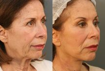 Facelift Before & After / by Dr. Paul Nassif