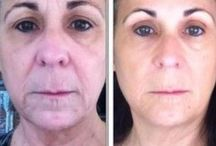 Organic Facelift Methods To Look More Youthful Utilizing Face Workouts / The No Surgery Facelift: Take A Crack At Facial Yoga Treatments For A Younger Appearance
