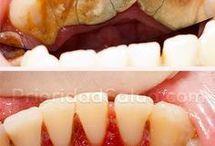dientes sin sarro