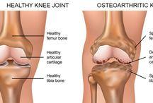 Knee Osteoarthritis Physiotherapy