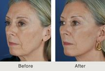 NC Facial Plastic Surgery Blog Posts / Dr. Kulbersh specializes in obtaining natural-looking results for aging faces and rhinoplasty.  He specializes in procedures such as rhinoplasty, face lift, eye surgery, and facial injectables (Botox and Fillers).