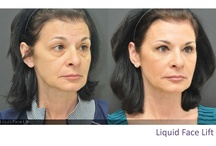 Before and After's / by Dr. Hevia