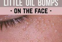 oil bumps