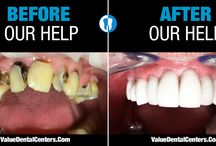 Value Dental Centers - Before And After