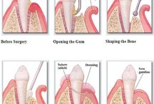 Periodontal Therapy and Maintenance