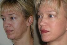 Using Face Firming Gymnastics / Face Training Exercises Will Transform A Saggy Face And Eliminate Face Lines
