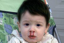 Berbahayakah Mimisan Pada Anak Serta penyebab dan Pengobatannya