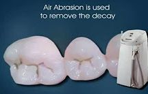 AIR ABRASION IN DENTISTRY